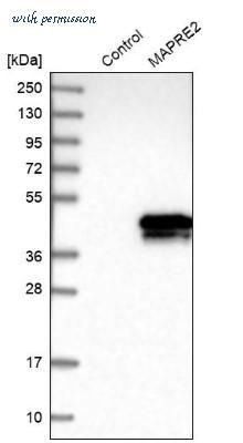 MAPRE2 antibody | 2 products in Validated Antibody Database